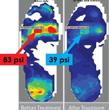 pressure-ulcer prevention