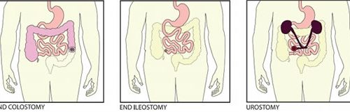 Colostomy, ileostomy, and urostomy