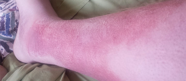 patient lower extremity redness