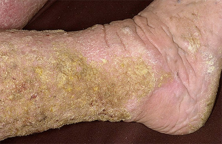 Venous dermatitis