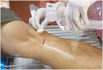 wound collagen dressing