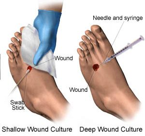 how to culture a chronic wound