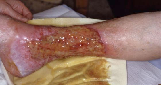 How to assess wound exudate - Wound Care Advisor