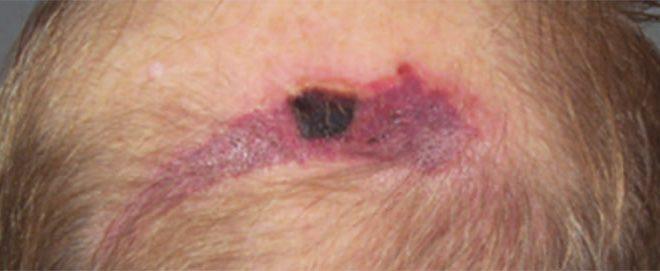 deep tissue injury
