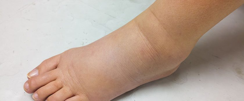 What's causing your patient's lower-extremity redness