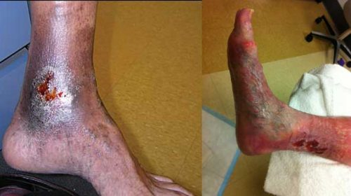 Managing chronic venous leg ulcers — what's the latest evidence?