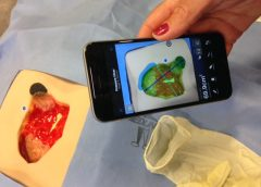 Imaging technology to aid wound care