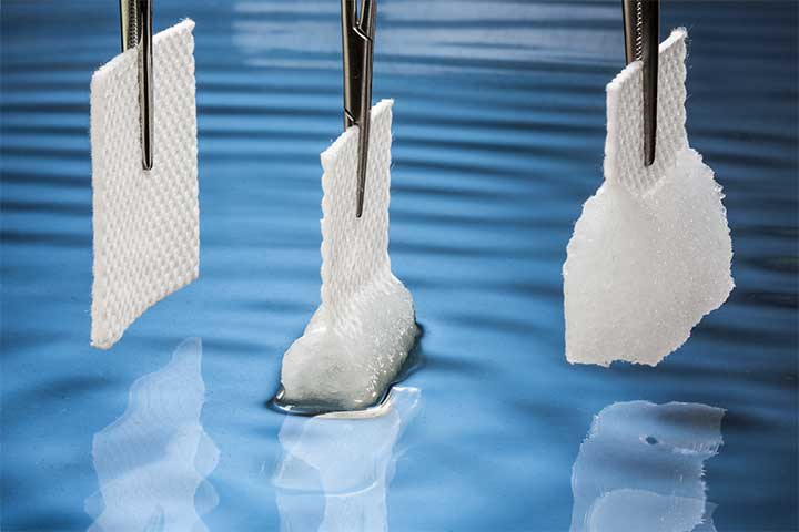 Flexible Materials Innovations Advances Wound Care