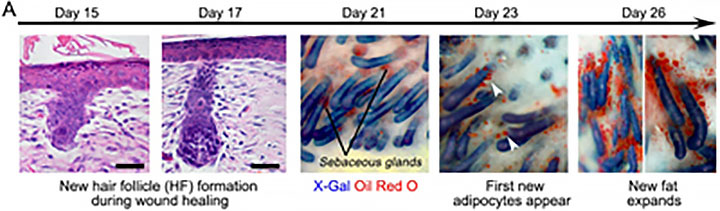 new hair follicle formation during wound healing