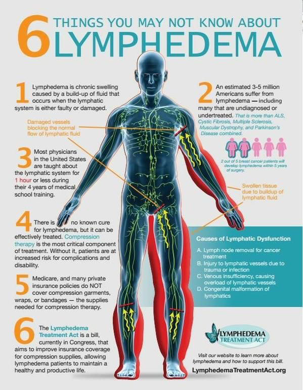 Helping Patients with Lymphedema