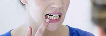 salivary peptide wound healing