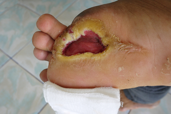 Diabetic Foot Ulcers Heal Faster With Probiotic Supplementation Wound Care Advisor