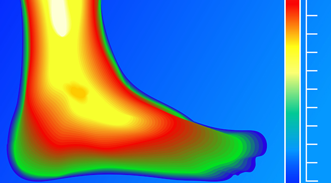 Predicting diabetic foot ulcer healing improves with thermal imaging